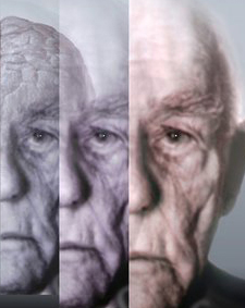 Dementia - Elder Care